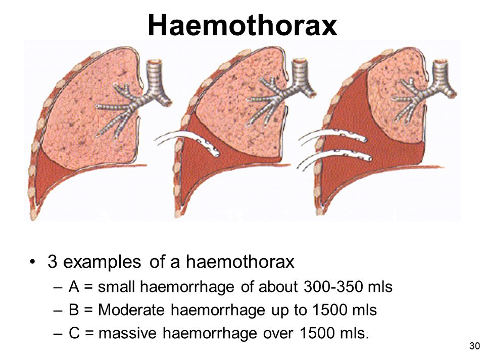 30 Haemothorax 3 examples of a haemothorax –A = small haemorrhage of about mls –B = Moderate haemorrhage up to 1500 mls –C = massive haemorrhage over 1500 mls.