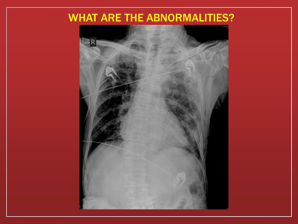 WHAT ARE THE ABNORMALITIES