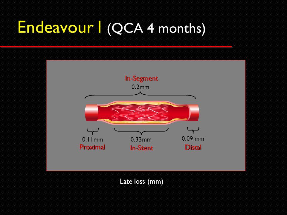 Endeavour I (QCA 4 months) Late loss (mm) 0.11mm 0.09 mm 0.33mm Proximal Distal In-Stent 0.2mm In-Segment