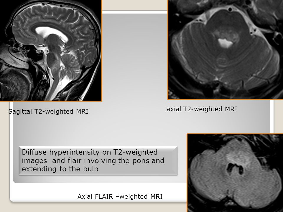Diffuse hyperintensity on T2-weighted images and flair involving the pons and extending to the bulb Diffuse hyperintensity on T2-weighted images and flair involving the pons and extending to the bulb Axial FLAIR –weighted MRI Sagittal T2-weighted MRI axial T2-weighted MRI