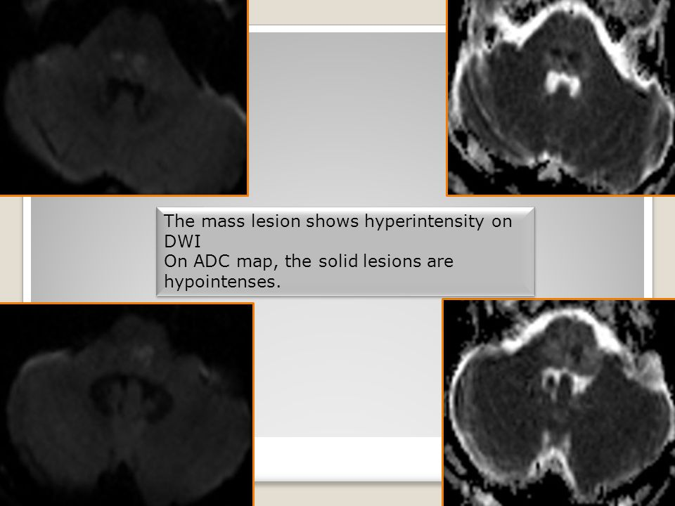 The mass lesion shows hyperintensity on DWI On ADC map, the solid lesions are hypointenses.