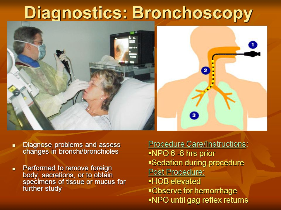 Diagnostics: Bronchoscopy Diagnose problems and assess changes in bronchi/bronchioles Diagnose problems and assess changes in bronchi/bronchioles Performed to remove foreign body, secretions, or to obtain specimens of tissue or mucus for further study Performed to remove foreign body, secretions, or to obtain specimens of tissue or mucus for further study Procedure Care/Instructions:  NPO 6 -8 hrs prior  Sedation during procedure Post Procedure:  HOB elevated  Observe for hemorrhage  NPO until gag reflex returns
