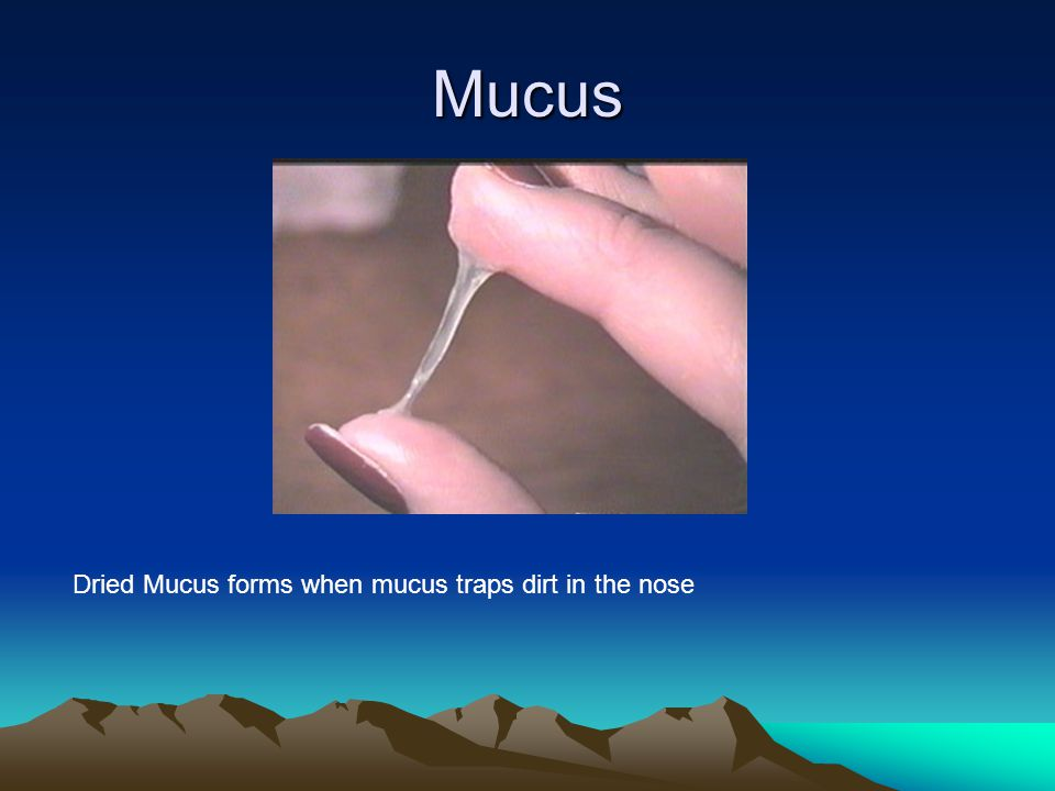 Mucus Dried Mucus forms when mucus traps dirt in the nose