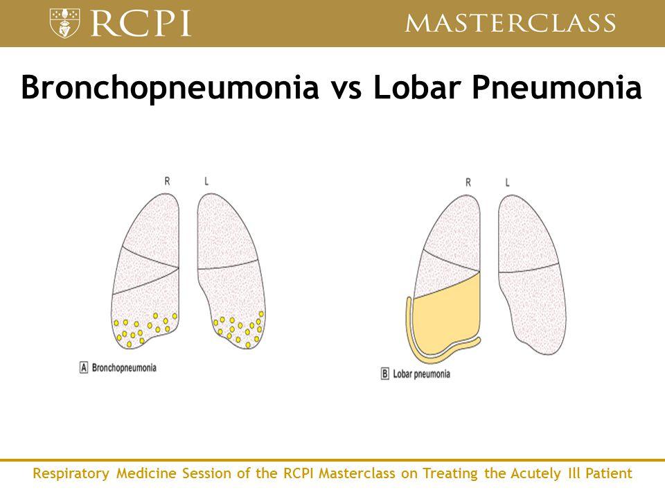 Respiratory Medicine Session of the RCPI Masterclass on Treating the Acutely Ill Patient Bronchopneumonia vs Lobar Pneumonia
