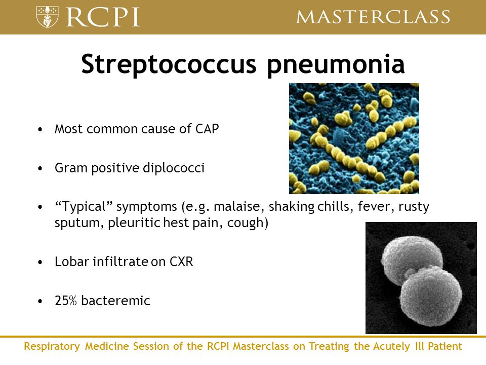Respiratory Medicine Session of the RCPI Masterclass on Treating the Acutely Ill Patient Streptococcus pneumonia Most common cause of CAP Gram positive diplococci Typical symptoms (e.g.