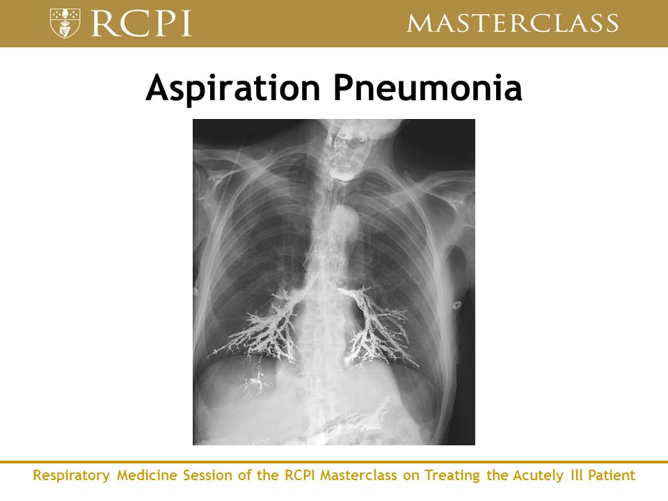 Respiratory Medicine Session of the RCPI Masterclass on Treating the Acutely Ill Patient Aspiration Pneumonia