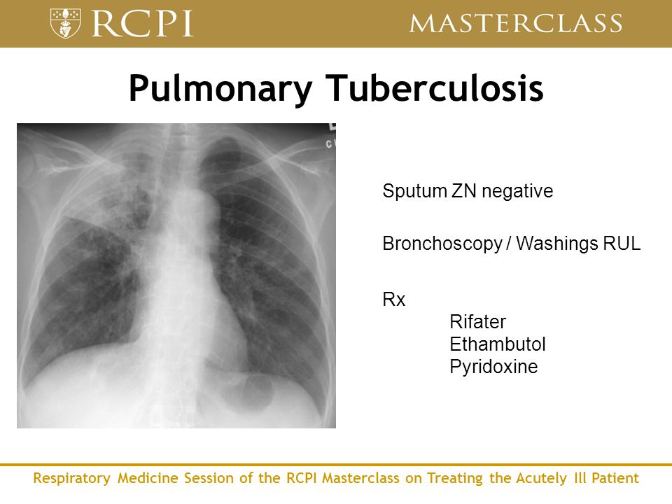 Respiratory Medicine Session of the RCPI Masterclass on Treating the Acutely Ill Patient Pulmonary Tuberculosis Sputum ZN negative Bronchoscopy / Washings RUL Rx Rifater Ethambutol Pyridoxine