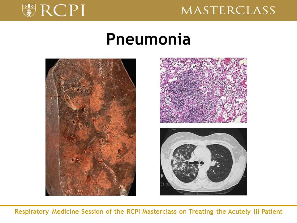 Respiratory Medicine Session of the RCPI Masterclass on Treating the Acutely Ill Patient Pneumonia