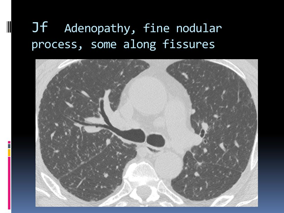 Jf Adenopathy, fine nodular process, some along fissures