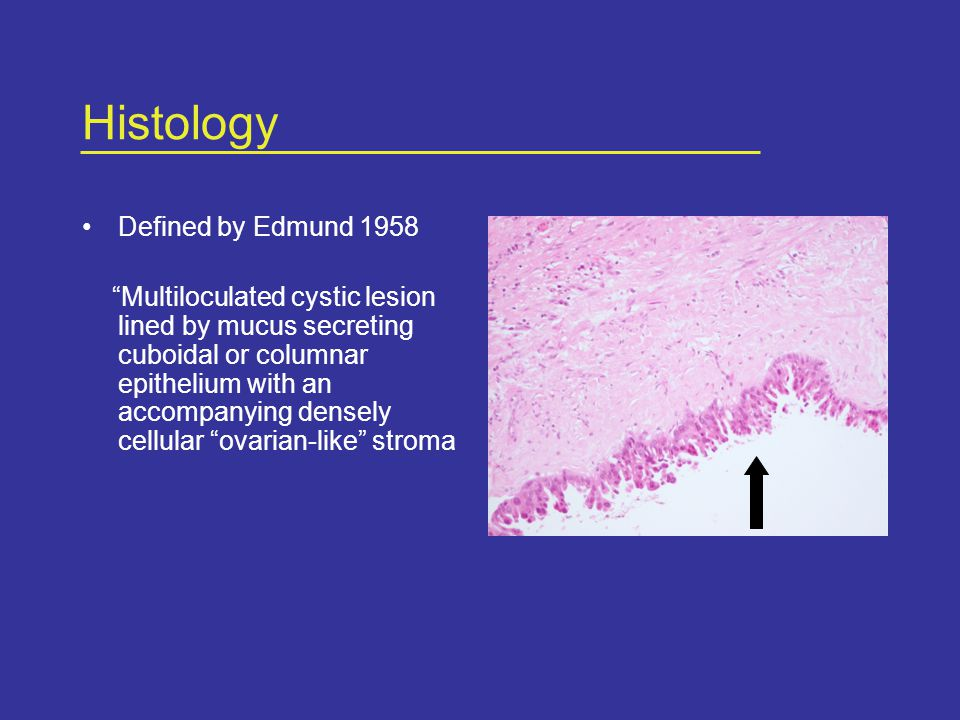 Histology Defined by Edmund 1958 Multiloculated cystic lesion lined by mucus secreting cuboidal or columnar epithelium with an accompanying densely cellular ovarian-like stroma