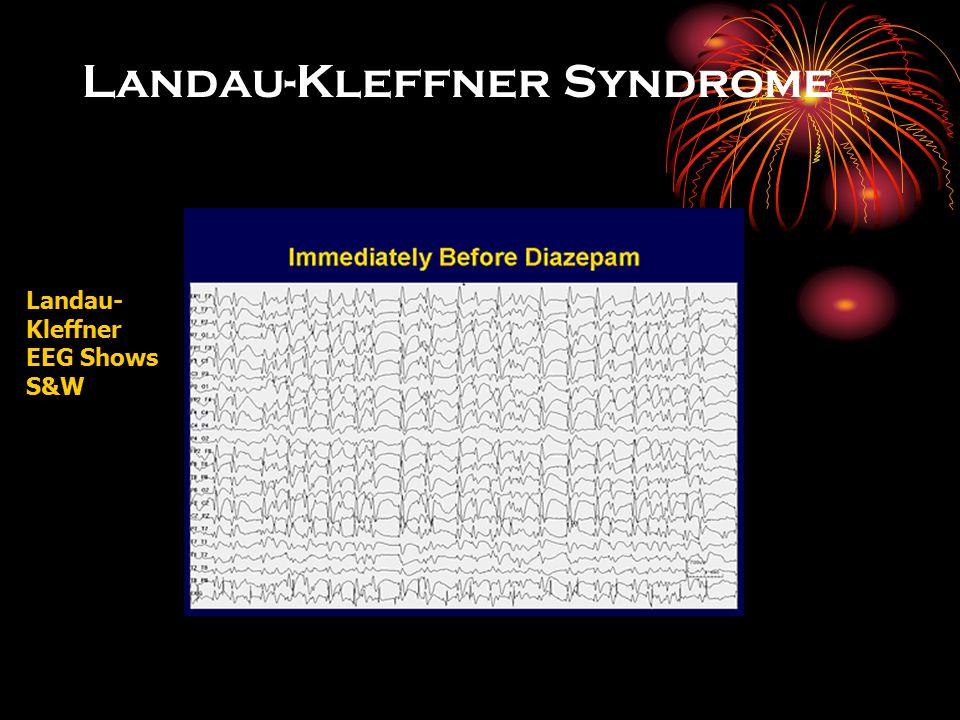 синдром Ландау - Клеффнера