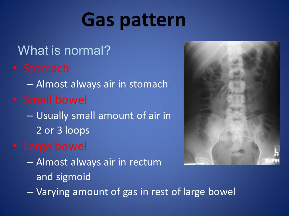 Generalised ileus Key features Entire bowel aperistaltic/hypoperistaltic Dilated small bowel and large bowel to rectum (with LBO no gas in rectum/sigmoid) Long air-fluid levels CAUSEREMARK *PostoperativeUsually abdominal surgery Electrolyte imbalanceDiabetic ketoacidosis * almost always