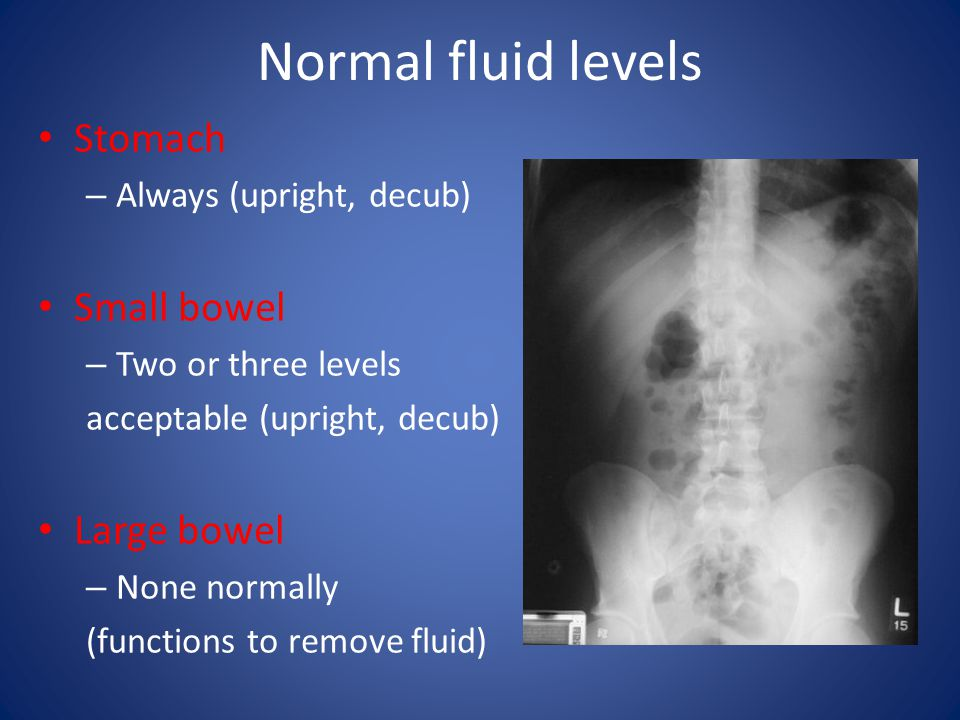Lead pipe colon Shortening of colon secondary to fibrosis Loss of haustration Ulcerative colitis