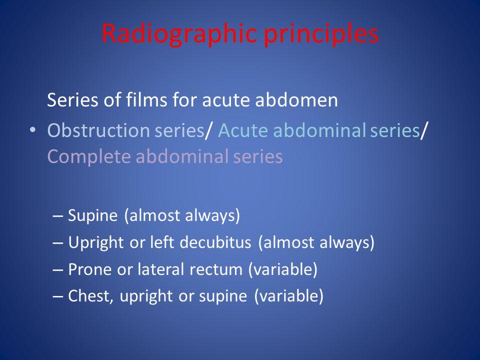 Pneumatosis intestinalis Intramural air, best appreciated in profile