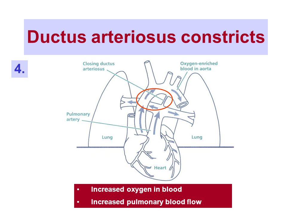 Ductus arteriosus constricts Increased oxygen in blood Increased pulmonary blood flow 4.