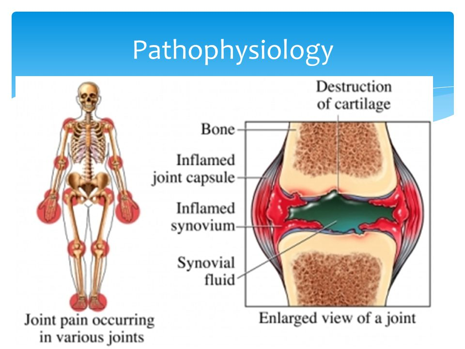  Inflammatory cells infiltrate the synvoium and they proliferate  Macrophages and osteoclasts create chronically inflamed tissue (pannus)  This extends from the joint margins and erodes the articular cartilage, by: - blocking the normal route for nutrition - direct effect of cytokines on the chrondrocytes  Extensive erosion of cartilage and inflammation of ligament insertions  Bone is exposed and deformity ensues  There is marked vascular proliferation and increased permeability to blood vessels and the synovial layer leads to effusions  Rheumatoid factor can predict prognosis: high titres is associated with progressive disease  Anti-cyclic citrullinated peptide antibodies (anti-CCP) are much more specific Pathophysiology