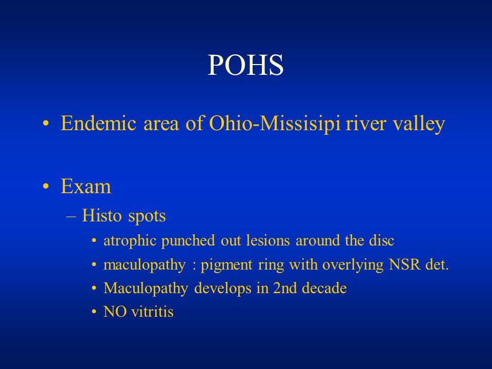 13 POHS ...  Presumed Ocular Histoplasmosis
