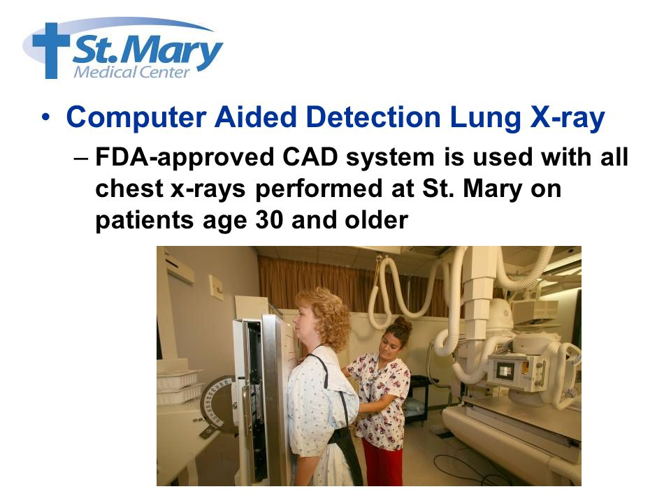 Computer Aided Detection Lung X-ray –FDA-approved CAD system is used with all chest x-rays performed at St.