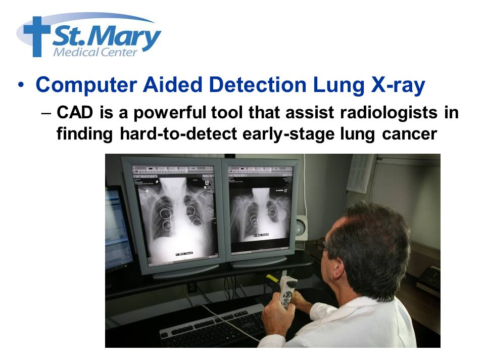 Computer Aided Detection Lung X-ray –CAD is a powerful tool that assist radiologists in finding hard-to-detect early-stage lung cancer