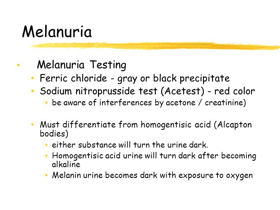 Меланурия