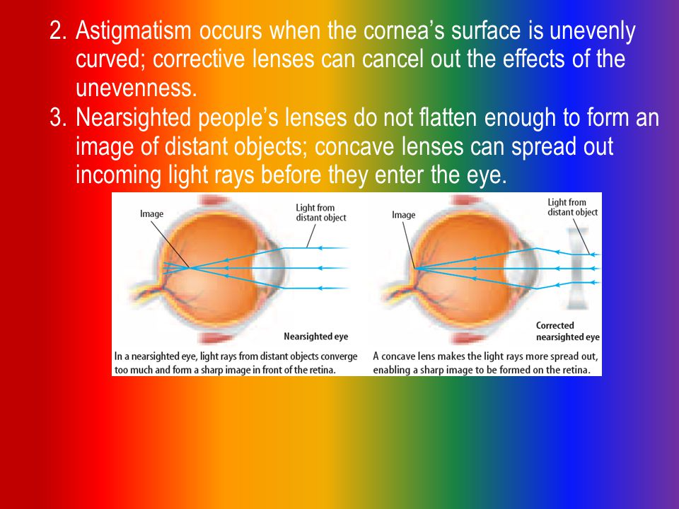 3.Nearsighted people's lenses do not flatten enough to form an image of distant objects; concave lenses can spread out incoming light rays before they enter the eye.