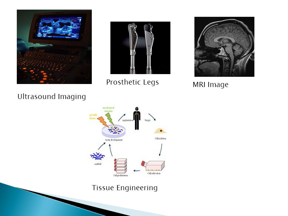 Ultrasound Imaging Prosthetic Legs MRI Image Tissue Engineering