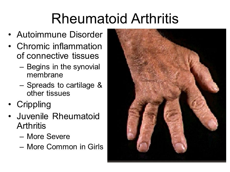 Rheumatoid Arthritis Autoimmune Disorder Chromic inflammation of connective tissues –Begins in the synovial membrane –Spreads to cartilage & other tissues Crippling Juvenile Rheumatoid Arthritis –More Severe –More Common in Girls