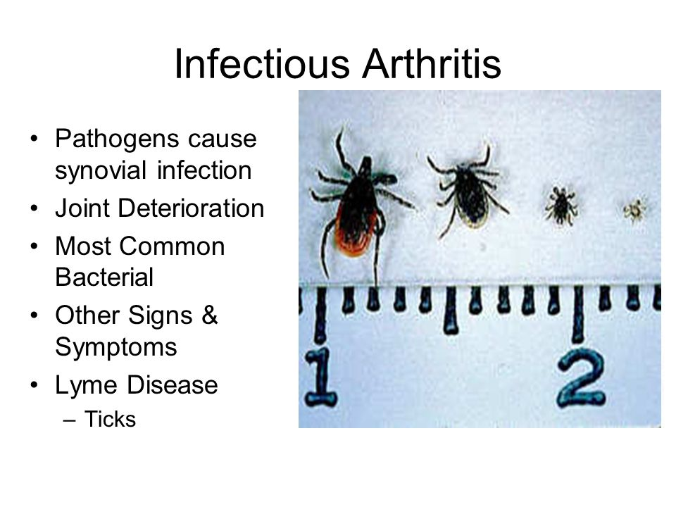 Infectious Arthritis Pathogens cause synovial infection Joint Deterioration Most Common Bacterial Other Signs & Symptoms Lyme Disease –Ticks