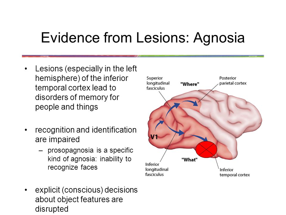 Evidence from Lesions: Agnosia Lesions (especially in the left hemisphere) of the inferior temporal cortex lead to disorders of memory for people and things recognition and identification are impaired –prosopagnosia is a specific kind of agnosia: inability to recognize faces explicit (conscious) decisions about object features are disrupted