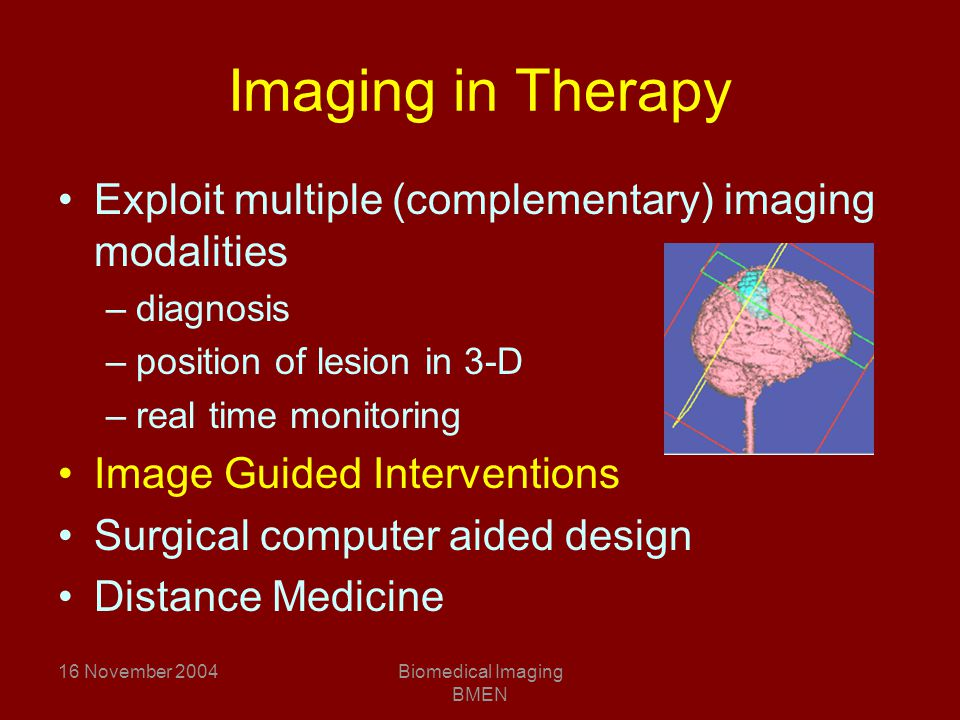 16 November 2004Biomedical Imaging BMEN Imaging in Therapy Exploit multiple (complementary) imaging modalities –diagnosis –position of lesion in 3-D –real time monitoring Image Guided Interventions Surgical computer aided design Distance Medicine