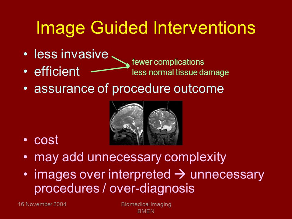 16 November 2004Biomedical Imaging BMEN Image Guided Interventions less invasive efficient assurance of procedure outcome cost may add unnecessary complexity images over interpreted  unnecessary procedures / over-diagnosis fewer complications less normal tissue damage