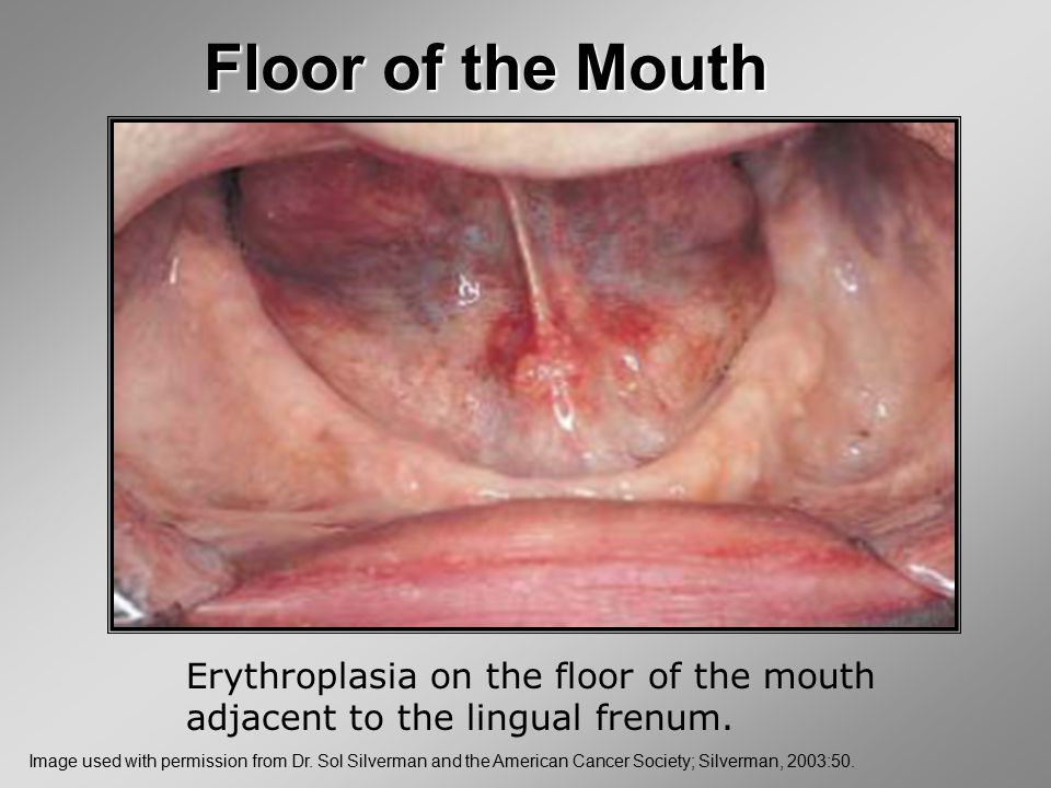 Floor of the Mouth Erythroplasia on the floor of the mouth adjacent to the lingual frenum.