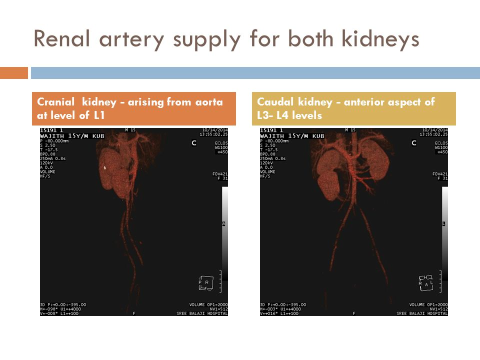 Renal artery supply for both kidneys Cranial kidney - arising from aorta at level of L1 Caudal kidney - anterior aspect of L3- L4 levels