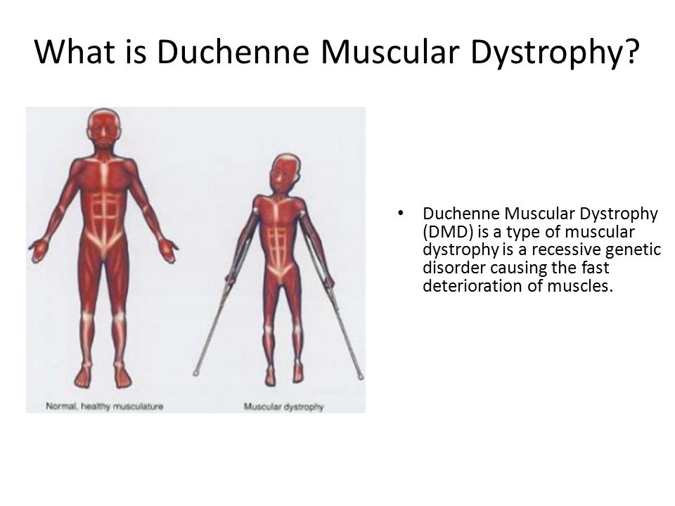an overview of muscular dystrophy Muscular dystrophy (md) distal muscular dystrophy, oculopharyngeal muscular dystrophy, and emery-dreifuss muscular dystrophy symptoms: an overview.