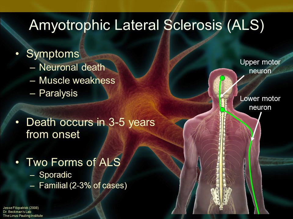 amyotrophic lateral scierosis essay Amyotrophic lateral sclerosis (als) estimates from national databases in the united states from 2001 to 2010 abstracts from theme 11:.