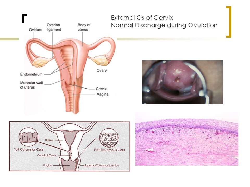 Cervix External Os of Cervix Normal Discharge during Ovulation