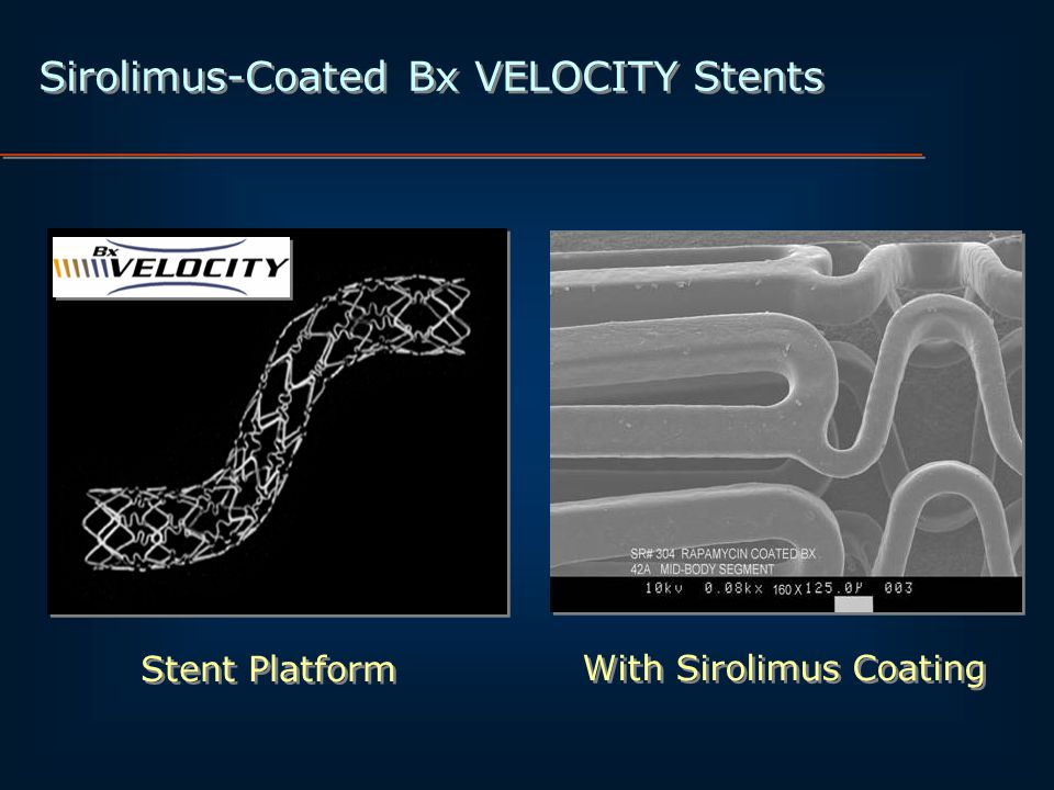Sirolimus-Coated Bx VELOCITY Stents With Sirolimus Coating Stent Platform