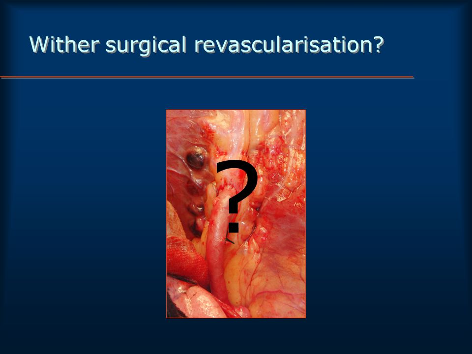 Wither surgical revascularisation