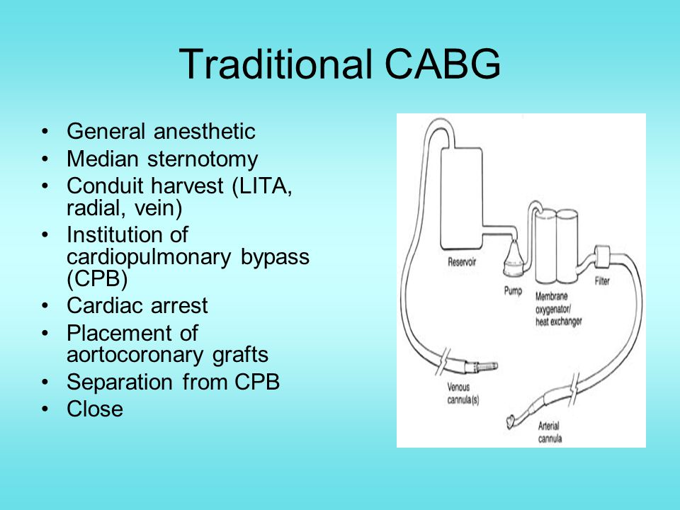 Traditional CABG General anesthetic Median sternotomy Conduit harvest (LITA, radial, vein) Institution of cardiopulmonary bypass (CPB) Cardiac arrest Placement of aortocoronary grafts Separation from CPB Close