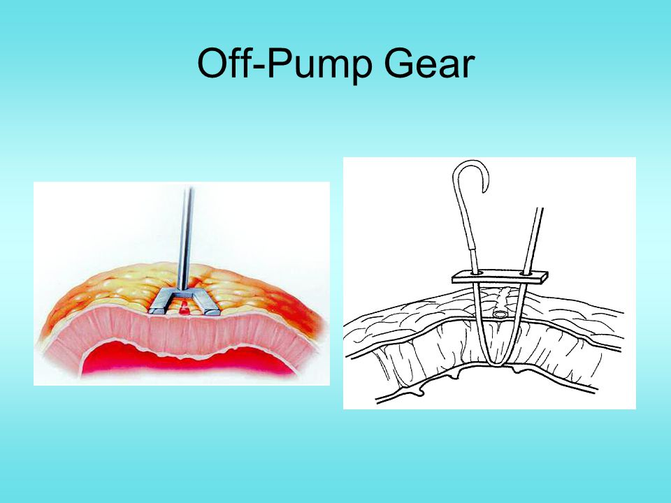 Off-Pump Gear