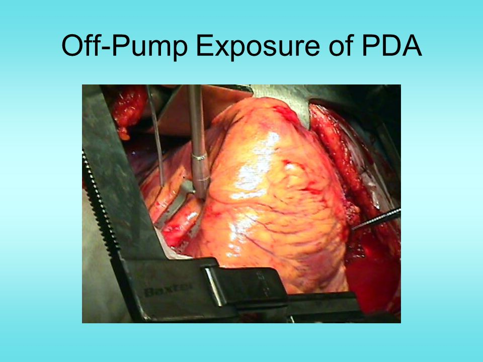 Off-Pump Exposure of PDA