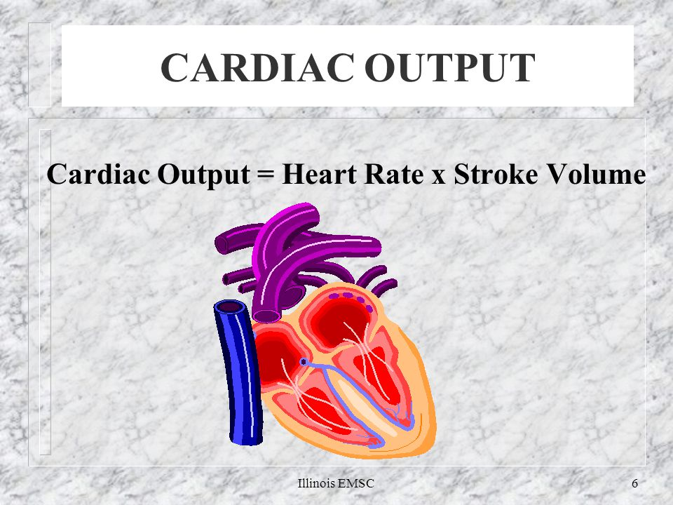 Illinois EMSC6 CARDIAC OUTPUT Cardiac Output = Heart Rate x Stroke Volume