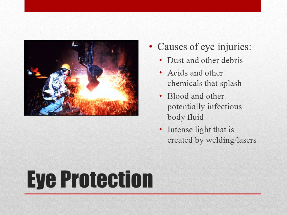 Eye Protection Causes of eye injuries: Dust and other debris Acids and other chemicals that splash Blood and other potentially infectious body fluid Intense light that is created by welding/lasers