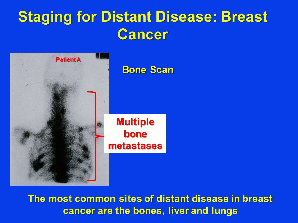 Bone Scan Staging for Distant Disease: Breast Cancer Multiple bone metastases Patient A The most common sites of distant disease in breast cancer are the bones, liver and lungs