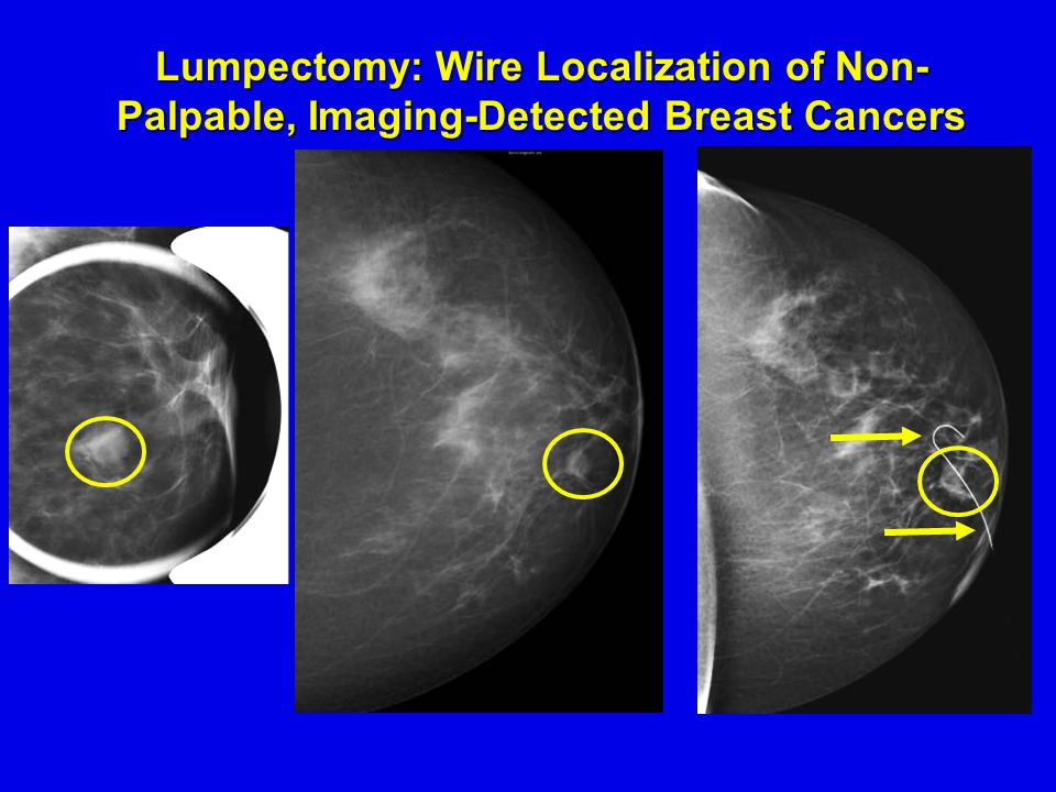 Lumpectomy: Wire Localization of Non- Palpable, Imaging-Detected Breast Cancers