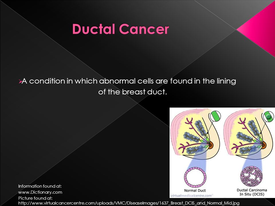  A condition in which abnormal cells are found in the lining of the breast duct.