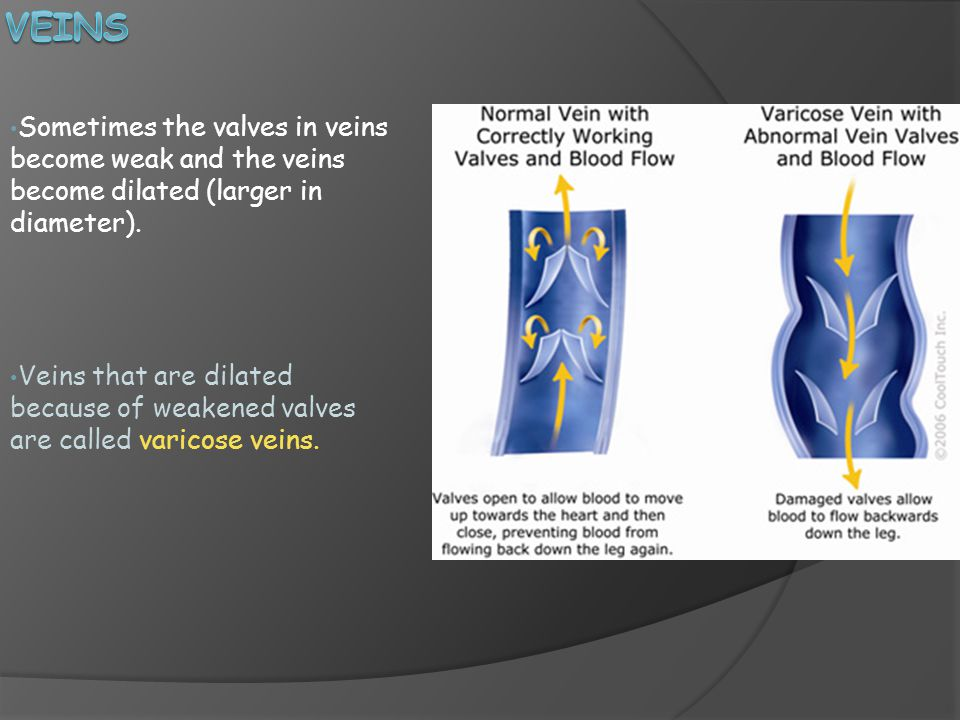 Sometimes the valves in veins become weak and the veins become dilated (larger in diameter).