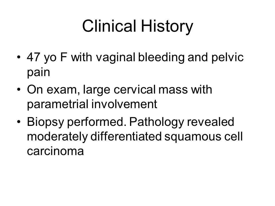 Clinical History 47 yo F with vaginal bleeding and pelvic pain On exam, large cervical mass with parametrial involvement Biopsy performed.