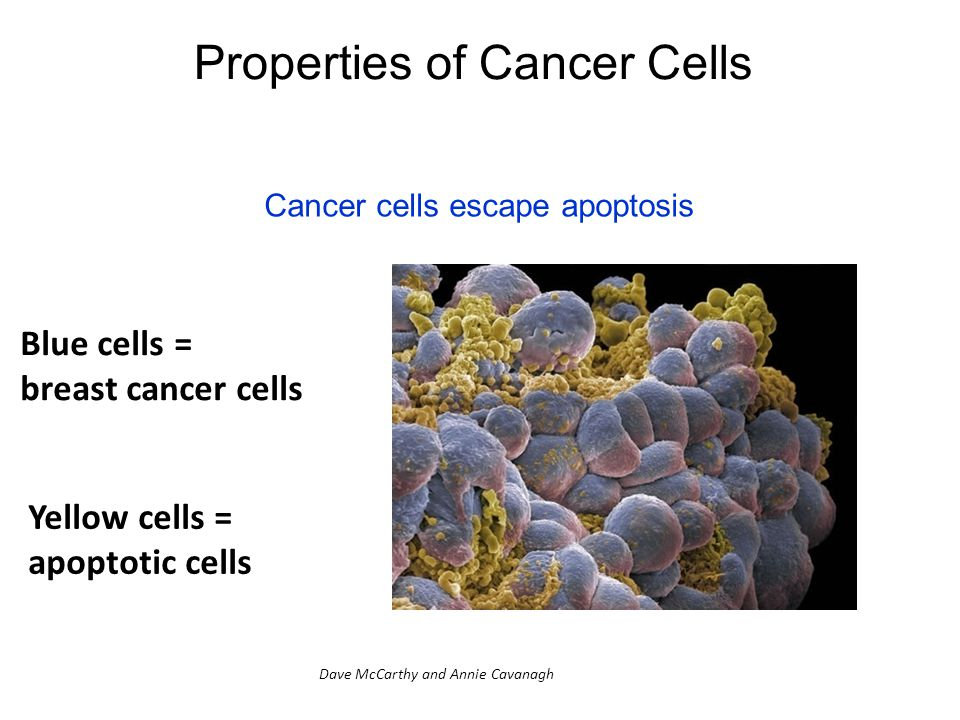Properties of Cancer Cells Cancer cells escape apoptosis Blue cells = breast cancer cells Yellow cells = apoptotic cells Dave McCarthy and Annie Cavanagh
