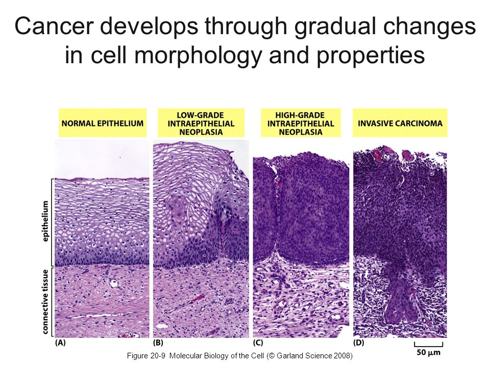 Figure 20-9 Molecular Biology of the Cell (© Garland Science 2008) Cancer develops through gradual changes in cell morphology and properties
